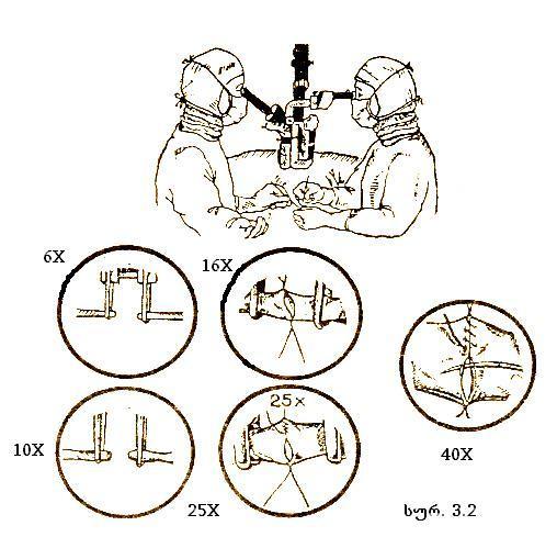 saoperacio_mikroskopi2